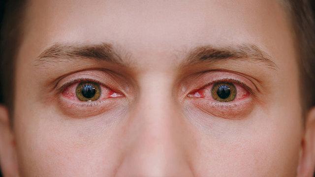 5 دلیل احتمالی قرمزی چشم ها
