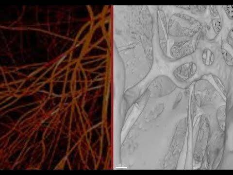 شناسایی یک رگ خونی جدید در استخوان ها!