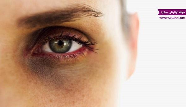 درمان سیاهی دور چشم با مواد طبیعی و غیر مضر